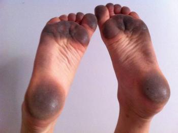 Photo Of Dirty Feet
